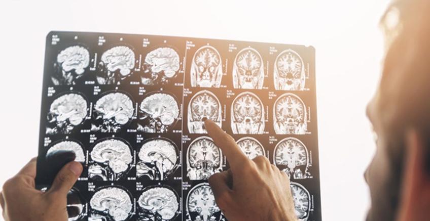 Epilepside Ani Ölüm Nedir?