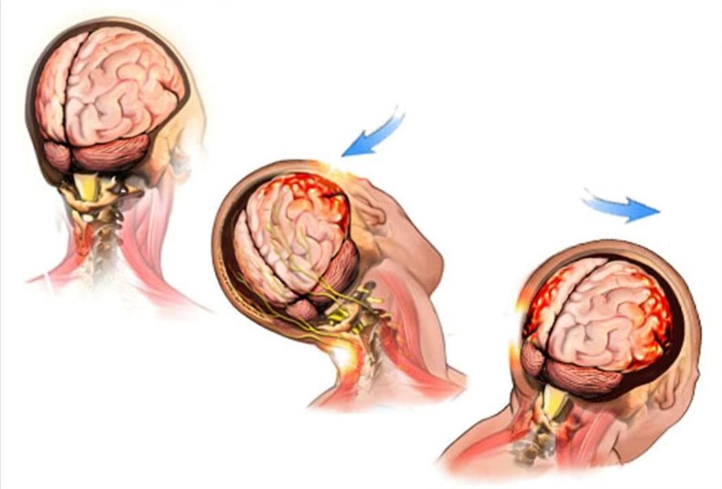 Travmatik Beyin Hasarı