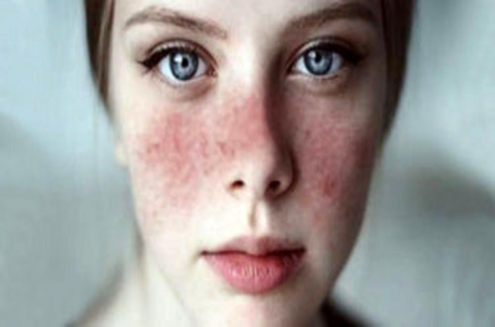 Lupus Nedir?