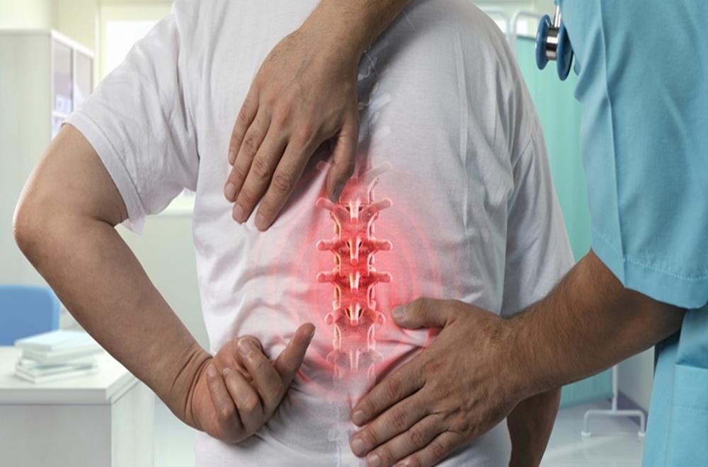 Spondiloartrit Hakkında Bilinmesi Gereken Her Şey