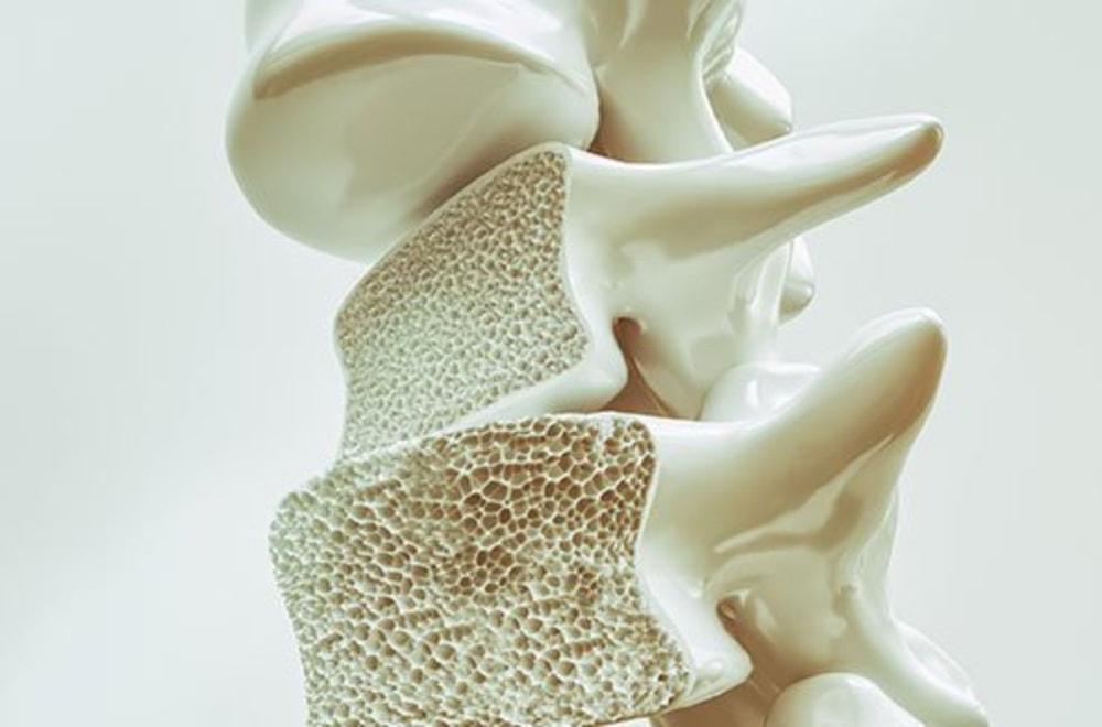 Osteoporoz (Kemik Erimesi) Hakkında Bilmeniz Gereken Her Şey