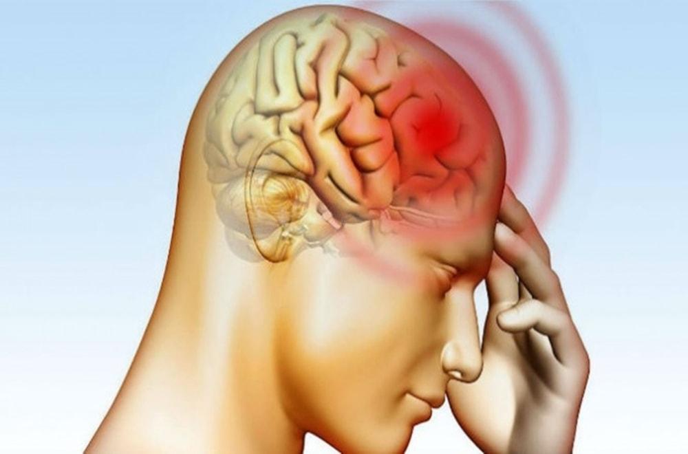 Kafa Yaralanmalarından ve Felçten Kaynaklanan Afaziyi Tedavi Eden DKT'ler