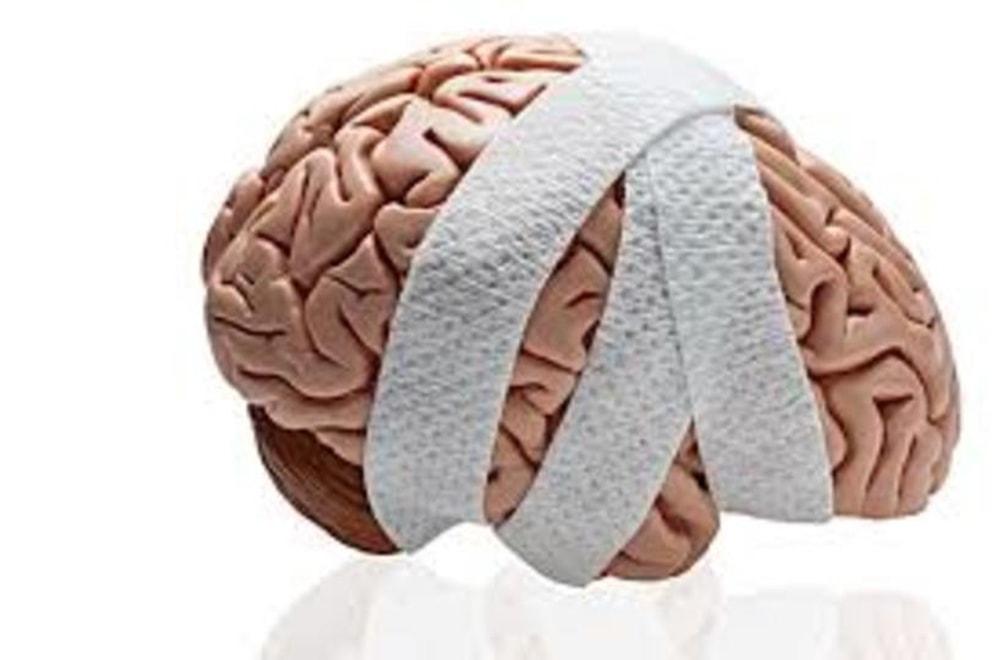 Travmatik Beyin Hasarı (TBH): Belirtileri, Sebepleri ve Tedavisi Nelerdir?